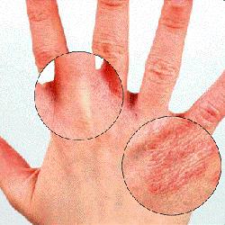 Dermatitis image